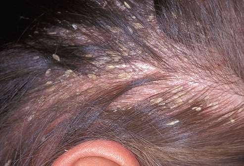 Các nguy cơ nhiễm khuẩn, bệnh da đầu